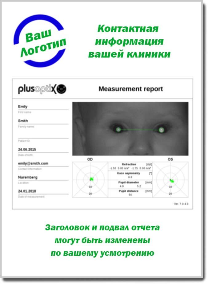 Принт результатов измерений, сделанных с помощью устройства Плюсоптикс А12